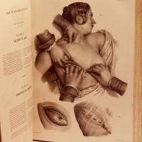 Traité complet de l'anatomie de l'Homme comprenant la médecine opératoire, par le Dr. J.-M. Bourgery, avec planches lithographiées d'après nature par N. H. Jacob. Ouvrage divisé en quatre parties: l'anatomie descriptive, anatomie générale, anatomie chirurgicale, anatomie philosophique.