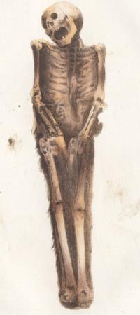 Traité de médecine légale. Quatrième édition, revue, corrigée et considérablement augmentée, contenant en entier le Traité des exhumations juridiques, par MM. Orfila et Lesueur. Avec planches.